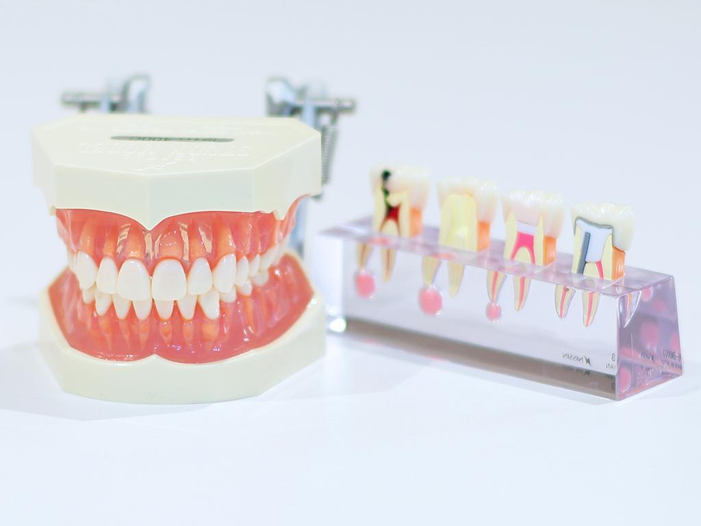 歯周病-美松デンタルオフィス